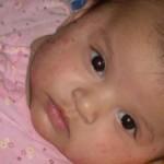<b>Экссудативный диатез у детей, причины появления и симптомы</b>