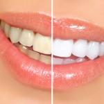 <b>Отбеливание зубов с осторожностью</b>