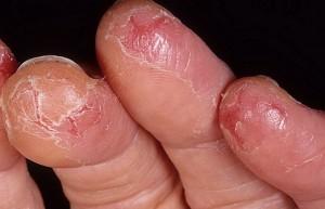 Вызывающие трещины заболевания