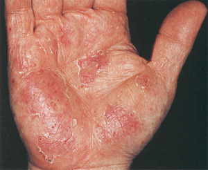 Трескается кожа на руках: причины