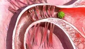 Особенности спаечной болезни