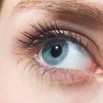 Синдром Шегрена симптомы
