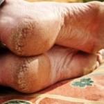 Как лечить трещины пяток в домашних условиях