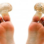 <b>Как лечить грибок ногтей</b>