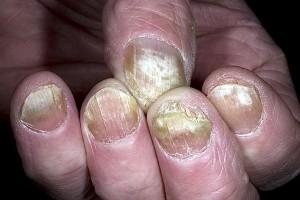 Лечение грибка ногтей на ногах, препараты, какие лучше