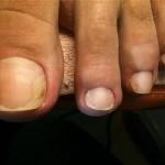<b>Как быстро вылечить грибок ногтей на ногах</b>