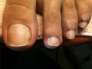 Как быстро вылечить грибок ногтей на ногах