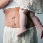 Подтяжка живота после родов