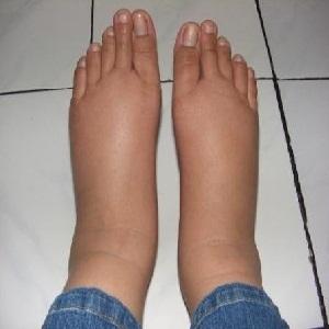 Как бороться с отеками ног