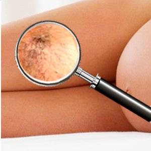 Чем опасен варикоз малого таза у женщин