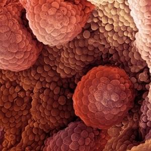 Определена связь между онкологией и метаболизмом