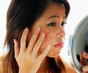 Как избавиться от шрамов и рубцов в домашних условиях?