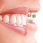 <b>Выравнивание зубов с помощью брекетов дома</b>