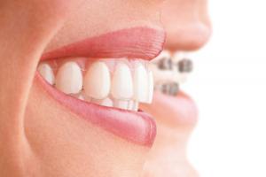 Выравнивание зубов с помощью брекетов дома