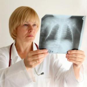 Эксперты рассказали, как отличить кашель при простуде от рака