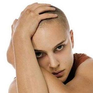 Определено, почему выпадают волосы у молодых людей 20-30 лет